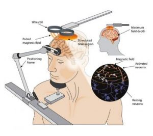 Repetitive Transcranial Magnetic Stimulation